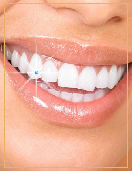 Diş Kristali İzmir Denta Point Polikliniklerinde Yapılmaktadır.