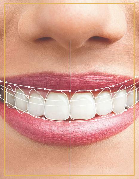 Gülüş Tasarımı , Smile Design İzmir Denta Point Karşıyaka ve Bostanlı Diş Polikliniklerinde Yapılmaktadır.