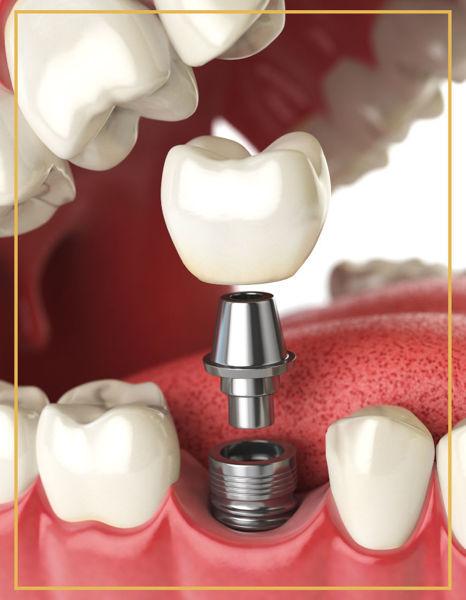Vidalı İmplant Dişler Denta Point Ağız ve Diş Sağlığı Polikliniği