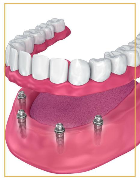 All On Four Dental İmplant Denta Point Ağız ve Diş Sağlığı Merkezi