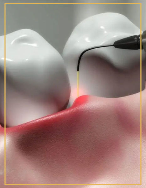 Lazerle Diş Eti Tedavisi resmi