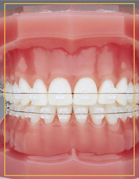 Karşıyaka Şeffaf Bralet ile Ortodonti | Bostanlı Şeffaf Bralet ile Ortodonti | İzmir Şeffaf Bralet ile Ortodonti